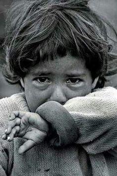 Poor little baby - Health Syrian Children, Poor Children, Save The Children, Precious Children, Beautiful Children, Emotional Photography, Dark Photography, Children Photography, Black And White Photography