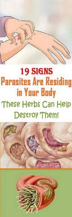 19 SIGNS PARASITES ARE RESIDING IN YOUR BODY-THESE HERBS CAN HELP DESTROY THEM