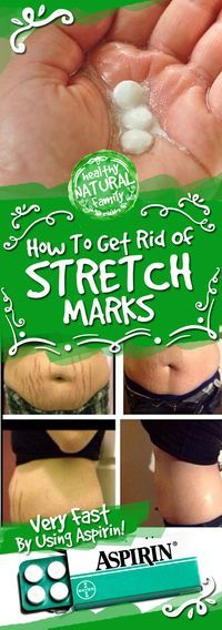 Stretch marks are visible lines on the skin, which usually appear in the abdominal wall, over the thighs, upper arms, buttocks, and breasts. This cosmetic issue can cover large areas of the body. W…
