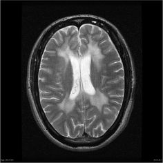 """Metachromatic leukodystrophy - bilateral symmetrical confluent areas of periventricular deep white matter signal change, in particular around the atria and frontal horns with sparing of subcortical U fibers leading to a """"butterfly pattern"""". Progression can lead to cortical and subcortical atrophy."""