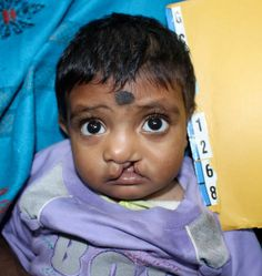 Little Kushi was too malnourished to receive surgery. Through G4's nutrition education program, her hope was restored.