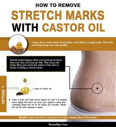 Is Castor oil Good for Preventing Stretch Marks? - Always in Health Stretch Marks On Thighs, Oil For Stretch Marks, Stretch Mark Remedies, Stretch Mark Removal, Prom Makeup Looks, Fall Makeup Looks, Skin Care Regimen, Skin Care Tips, Mac Cosmetics