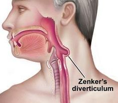 How does a patient with Zenker Diverticulum present?      1. Foul odor in mouth (Halitosis) = due to food entrapped in diverticulum      2. Painful swallowing = dysphagia