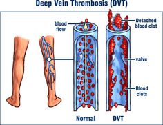 more people die from DVT each year than from aids and breast cancer combined