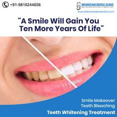 Keep smiling because life is a beutiful thing and there's so much to smile about.  We Care To Make You #Smile, here at Dr. Bhutani Dental Clinic.  Book your Appointment    91-9810-244-656 drbhutani@yahoo.com  #DentalClinic  #Dentist #Delhi #SmileMakeover  #BollywoodSmileMakeover #Dentistry #DentalCare #BhutaniDentalClinic