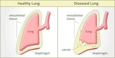 Mesothelioma is a cancer found in the lining surrounding the lungs, the stomach, the heart or the testicles. This cancer takes its name from the name that is given to this lining - the mesothelium. The pleura is the name for the mesothelial tissue surrounding the lungs and lining the chest cavity.