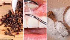 Dites adieu aux gencives inflammées avec ces remèdes naturels