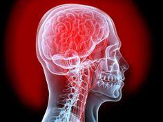 SEGUROS PRIZA te dice ¿cuáles son los síntomas de un derrame cerebral? Los síntomas de un derrame cerebral son: Entumecimiento o debilidad repentinos en el rostro, brazos o piernas (especialmente de un lado del cuerpo) Confusión súbita, dificultad para hablar o entender. Problemas repentinos para ver con uno o ambos ojos. Dificultad repentina para caminar, mareos, pérdida de equilibrio o coordinación de los movimientos. Dolor de cabeza súbito y severo sin causa conocida.