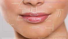 Fillers - Areas of treatment