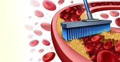 How to clean your arteries? Our body has its own detoxification mechanism, which cleanses and purifies the system in a complex but efficient way. Read more.