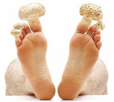 Vinegar For Toenail Fungus Treatment Key: 8624301190 Toenail Fungus Remedies, Psoriasis Remedies, Skin Fungus Treatment, Toe Fungus, Fungus Toenails, Propolis, Fungal Infection, Manicure E Pedicure, Tips