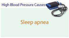 Sleep Apnea Remedies That Really Work High Blood Pressure Causes, Sleep Apnea Remedies, Feel Tired, Snoring, Genetics, Stress, Age, Psychological Stress
