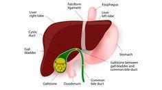 What is Gallbladder Dyskinesia?