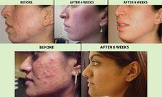 Facial Blue treatment light
