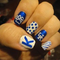 University of Kentucky! But want mu not Kentucky University Of Kentucky, Kentucky Wildcats, Kentucky Basketball, Wildcats Basketball, Basketball Season, Kentucky Game, Basketball Nails, Kentucky Girls, College Basketball