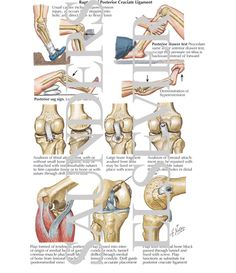 Posterior Cruciate Ligament (PCL) - Health, Medicine and Anatomy Reference Pictures