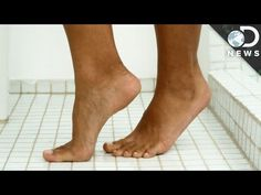 What Causes Warts? Warts are the second most common skin problem we face, but how and why do they form? Read More:'Warts and all' - the history and folklore of warts: a review Warts and verrucas - Symptoms What are the different types of warts? By: DNews.