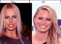After before pictures of Karolina Kurkova when she had her plastic surgery in latest yr - Karolina Kurkova' an actress we all love and at the same time hate as we watched the films wherein she played the supporting character. And although she has been incorporated with problems and issues lately' women out there still love to see Karolina Kurkova awesome face; her angelic... #KarolinaKurkovaAfterBeforeSurgery, #KarolinaKurkovaAfterPlasticSurgery, #KarolinaKurkovaB