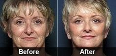 Anti-Wrinkle Serum That Removes The Signs Of Aging Gets Biggest Deal In Shark Tank History Anti Aging Medicine, Under Eye Bags, Eye Wrinkle, Reality Tv Shows, Wrinkle Remover, Anti Aging Cream, Beauty Routines, Serum, Foundation