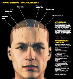 Acupuncture: An Alterative To Traditional Medical Care >>> Check this useful article by going to the link at the image.