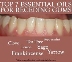 Receding gums are a warning sign of gum disease, which can lead to loss of teeth and erosion of the jaw. With essential oils for receding gums, you can heal and re-grow your gum naturally and safely
