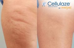 Cellulaze Before and after results, reviews