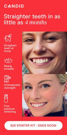 Teeth Care, Skin Care, Age Spots On Face, Teeth Straightening, Clear Aligners, Short Hair Cuts For Women, White Teeth, Silver Hair, Teeth Whitening