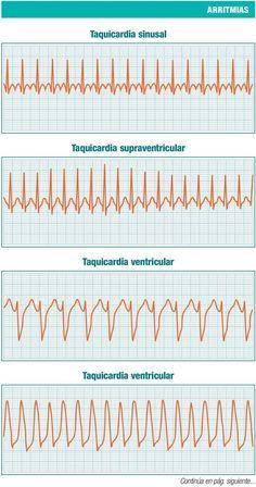 Taquicardia Ventricular, Line Chart, Medicine, Christmas Angels, Yoga, Chemical Synapse, Nursing, Emergency Medicine, Medicine Student