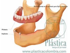 Implantes dentales - Plástica Colombia Oral Hygiene, Dental Extraction, Bone Grafting, Dental Offices, Dental Implants, It Works