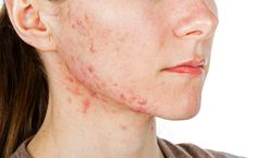 Planet Ayurveda provides best combination of effective herbal remedies such as Skin Care Pack for ayurvedic treatment of all skin problems like acne. Acne is the most common skin condition. Acne Treatment At Home, Cystic Acne Treatment, Homemade Acne Treatment, Acne Treatments, Spot Treatment, Peeling Maske, Acne Breakout, Hormonal Acne, How To Get Rid Of Acne