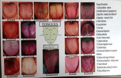 tongue chart - Google Search