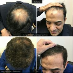 Toronto hair transplant doctor Dr. Robert Jones Toronto hair transplant clinic visit - 9 months post op FUE hair transplant before and after photo