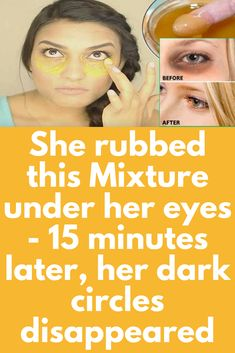 Dark circles and under eye fat are common problem shared by millions of people, most of them have dark heavy bags under their eyes dark heavy bags under their eyes because over work, lack of sleep, staying late night or you just had one to many drink - e Anti Aging, Dry Eyes Causes, Dark Circles Under Eyes, Homemade Mask, Eyes Problems, Puffy Eyes, Dark Eyes, Beauty Hacks, Beauty Tips