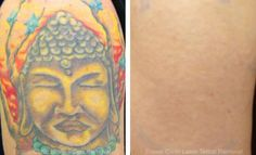 laser tattoo removal before and after photo 007