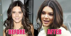 Kendall Jenner Before And After. See her plastic surgery transformation!
