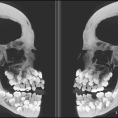 Supernumerary teeth x-ray