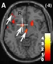 fmri scan of brain of a rejected person   http://www.psychologytoday.com/blog/the-mindful-self-express/201104/the-neuroscience-relationship-breakups