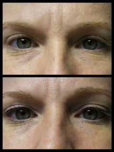 "Cosmetic tattoo top eyeliner before & immediately after.  A great solution for people with deep-set eyes who have a tendency to ""lose"" their eye make-up throughout the day."