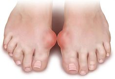 Gout refers to a certain form of inflammation of the joints and swellings of a recurrent type.Gout is one of the most painful forms of arthritis.