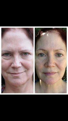 Amazing results with Nerium anti-aging night cream!  Terressanelson.nerium.com