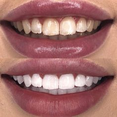 Step by Step How To Sell Whitening Fluoride Toothpaste Over and Over again-customer retention-repeat order Ap 24 Whitening Toothpaste, Whitening Fluoride Toothpaste, White Teeth Tips, Skin Routine, All Things Beauty, Portrait, Skin Care, Beautiful, Nu Skin Mud Mask