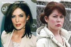 Lara Flynn Boyle had some odd Botox injections.  She really took to plastic surgery later in life.  Apart from the Botox she had a nose job too.