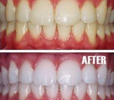 10 Tips to whiten your teeth naturally – Home remedieshttp://firstmemes.net/1592240-9650092