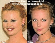 charlize theron before surgery - ✿⊱╮
