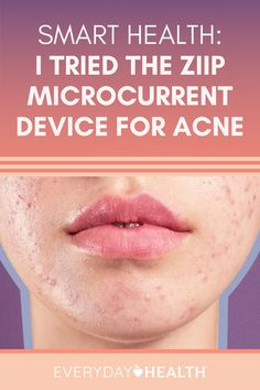 This handheld device may offer benefits for people with acne.