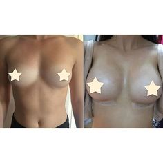 The breast augmentation muscle under