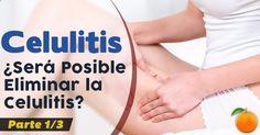 Eliminar Celulitis ¿Será Posible Conseguirlo? – Parte I