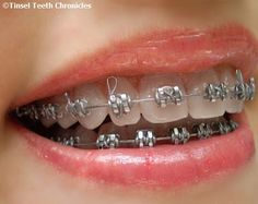 #braces One year after starting my total mouth makeover...my smile is comin' right along! :)  Lovin' these braces now!