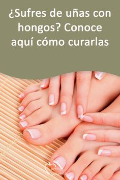 lupus decolorado dedos de los pies diabetes