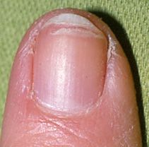 Brittle Nails – Causes, Symptoms and Healthy Nutrition Tips | Nutriclue